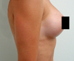 Breast Augmentation patient after photo