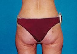 Buttock Lift patient after photo
