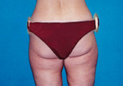Buttock Lift patient before photo