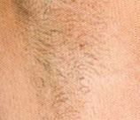 Laser Hair Removal patient before photo