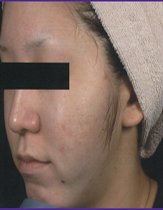 Intensif Microneedle Treatment patient patient after photo