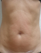 Intensif Microneedle Treatment patient after photo