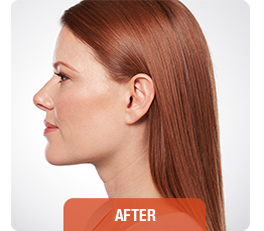 Kybella patient after photo