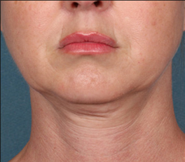 Kybella patient before photo