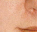 Microdermabrasion patient after photo