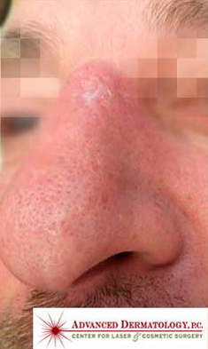 MOHS Skin Cancer Surgery patient after photo