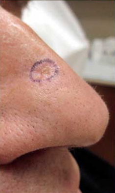 MOHS Skin Cancer Surgery patient before photo