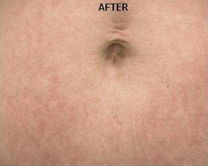 Stretch Marks patient after photo