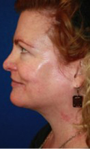 ThermiRF patient after photo