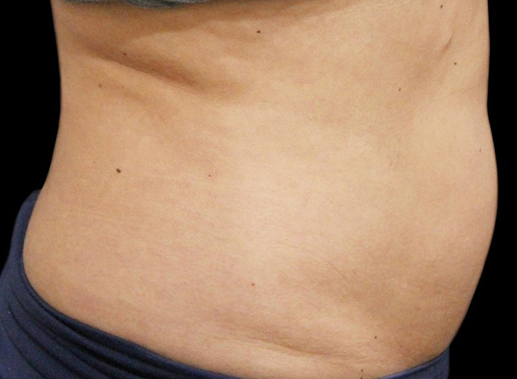 Vanquish Fat Removal Treatment patient after photo