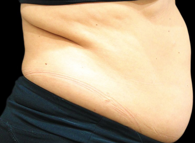 Vanquish Fat Removal Treatment patient before photo