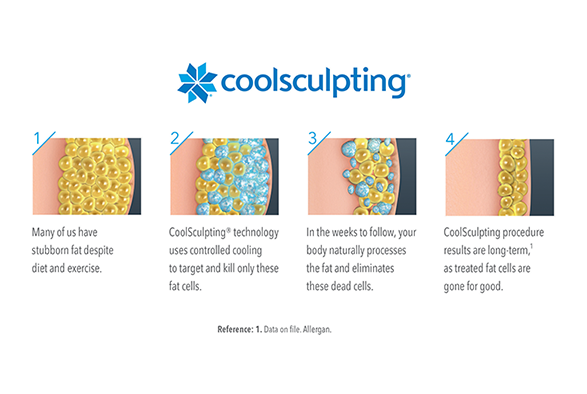 CoolSculpting in East Setauket, Long Island Service Photo4