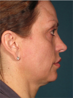 Ultherapy patient before photo