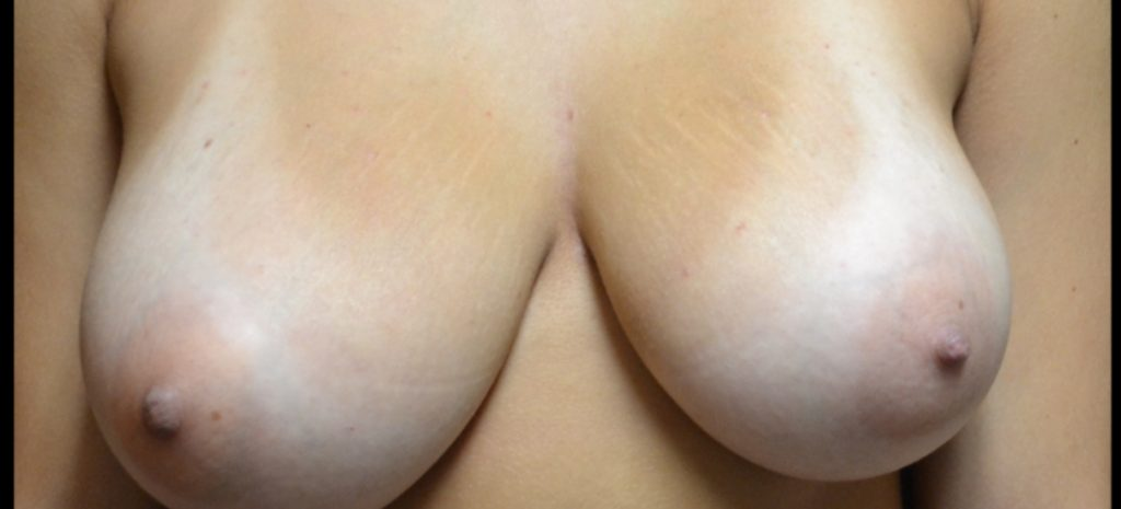 Breast Reduction 1 Separate Page Before