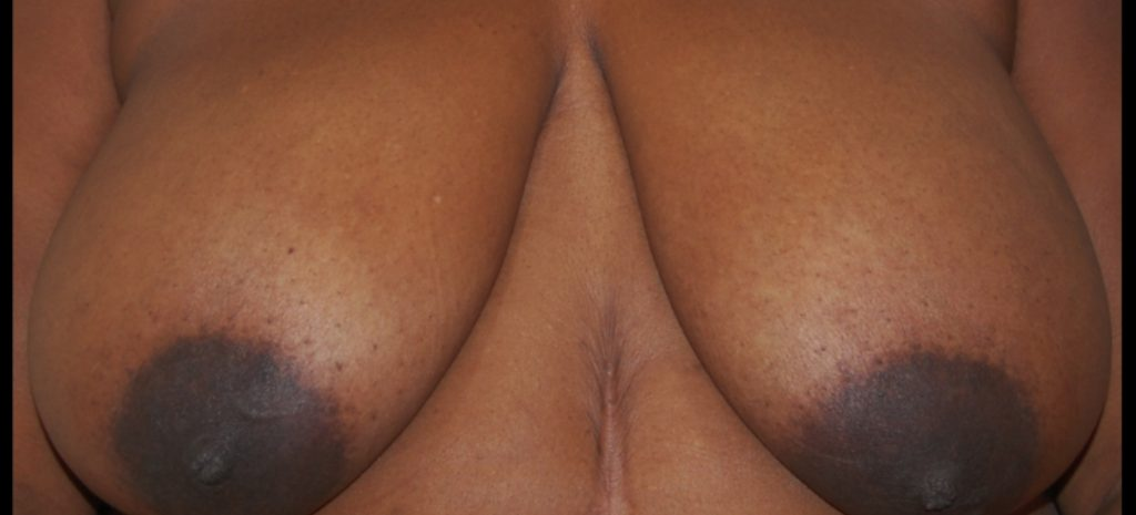 Breast Reduction 4 Separate Page Before