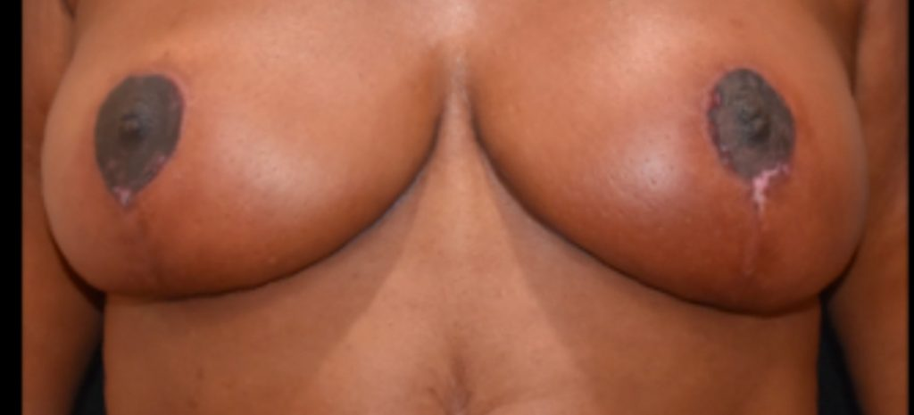 Breast Reduction 4 Separate Page After