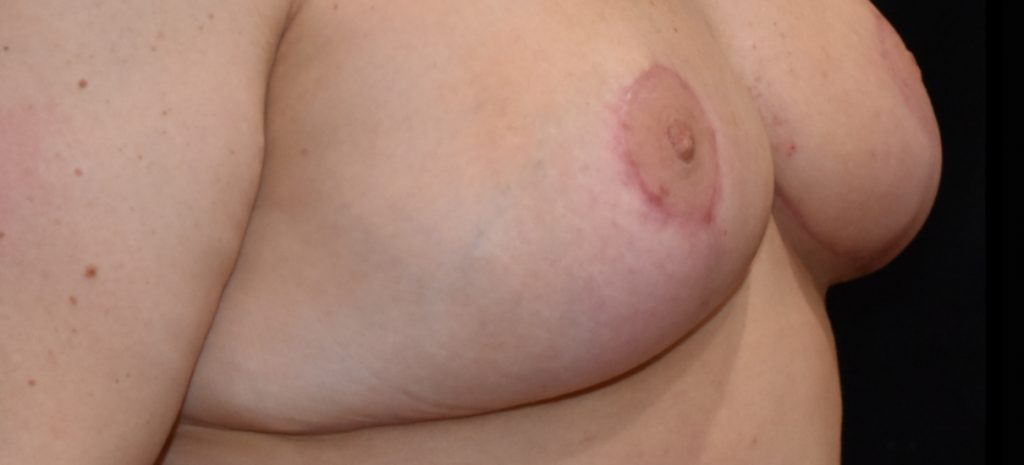 Breast Reduction 9 Separate Page After