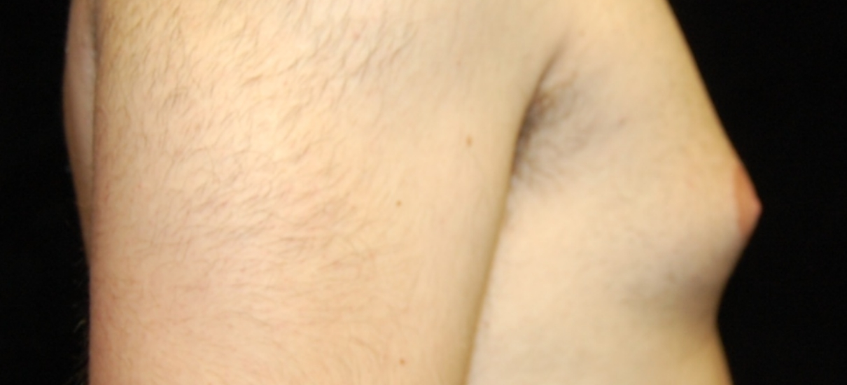 Gynecomasia Excision 1 Patient1 Set1 Before