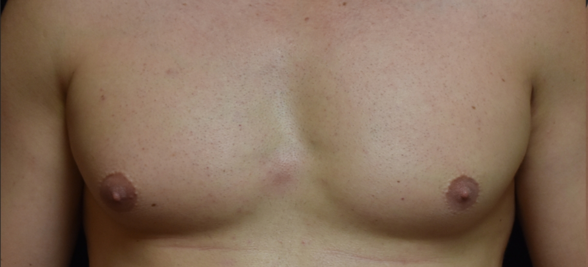 Gynecomasia Excision 3 Patient1 Set1 Before Page