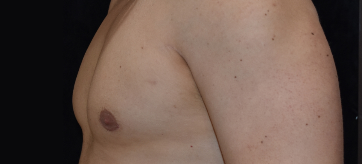 Gynecomasia Excision 4 Patient1 Set1 After Page