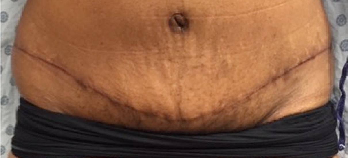 Tummy Tuck (Abdominoplasty) Patient 7 Patient1 Set1 After Page