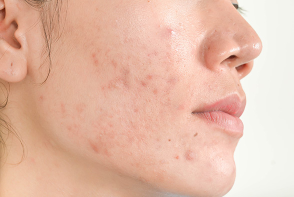ACNE AND ACNE SCARRING TREATMENTS IN OSSINING, NY Service Photo1