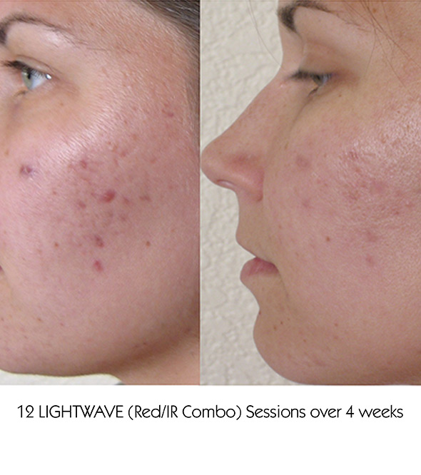 ACNE AND ACNE SCARRING TREATMENTS IN OSSINING, NY Service Photo2