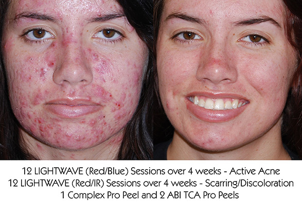 ACNE AND ACNE SCARRING TREATMENTS IN OSSINING, NY Service Photo3