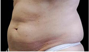 CoolSculpting patient before photo