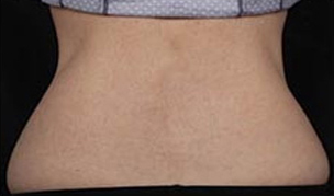CoolSculpting patient after photo