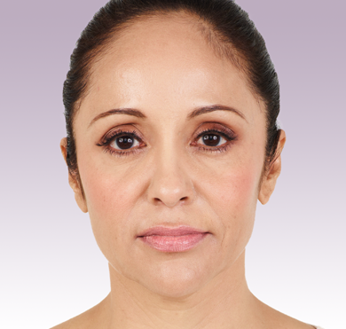 Juvederm XC patient after photo