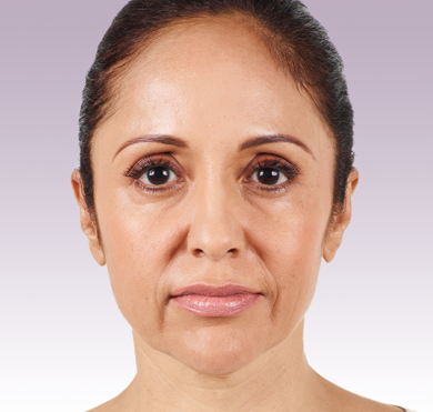 Juvederm XC patient before photo