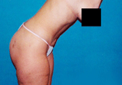 Liposuction patient after photo