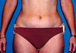 Liposuction patient before photo