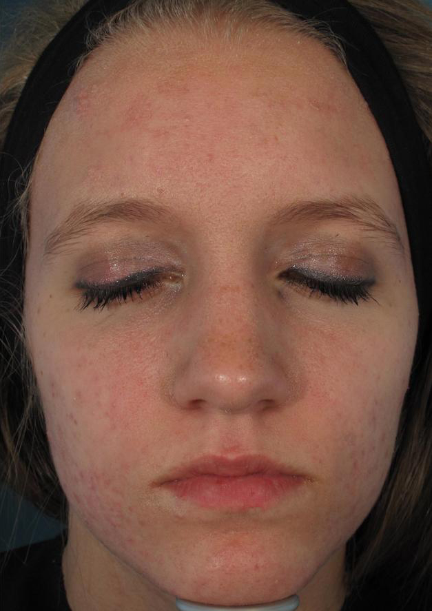 ACNE: AFTER RESULTS WITH ACLEARA LASER