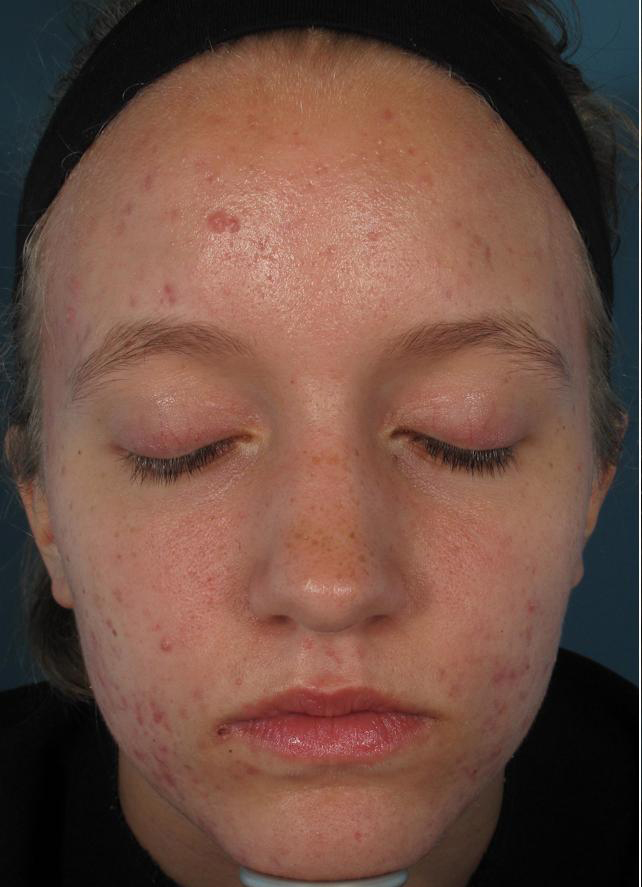 ACNE: BEFORE RESULTS WITH ACLEARA LASER