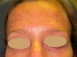 Botox 3 Patient1 Set1 After Page