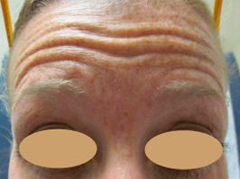Botox 3 Patient1 Set1 Before Page