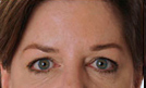 Botox 4 Patient1 Set1 After Page