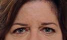 Botox 4 Patient1 Set1 Before Page