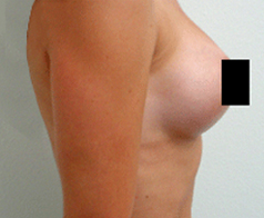 Breast Augmentation Patient 3 Patient1 Set1 After