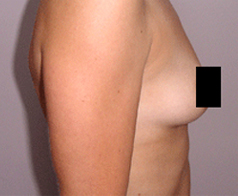 Breast Augmentation Patient 3 Patient1 Set1 Before