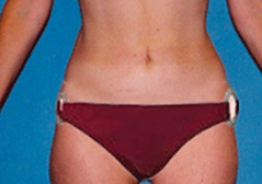 Medial Thigh Lift Patient 1 Patient1 Set1 After Page