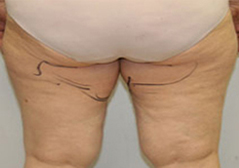 Medial Thigh Lift Patient 2 Patient1 Set1 Before Page