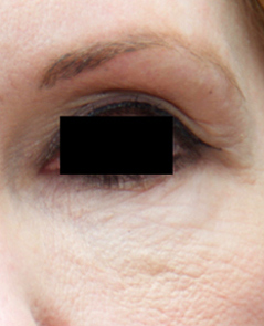 Microneedling Patient 1 Patient1 Set1 Before Page