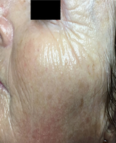 Microneedling Patient 2 Patient1 Set1 After Page
