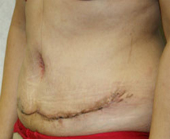 Tummy Tuck (Abdominoplasty) Patient 4 Patient1 Set1 After Page