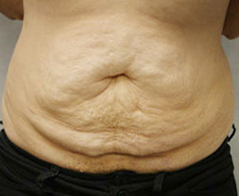 Tummy Tuck (Abdominoplasty) Patient 4 Patient1 Set1 Before Page