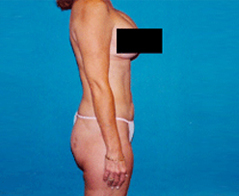 Tummy Tuck (Abdominoplasty) Patient 5 Patient1 Set1 After Page