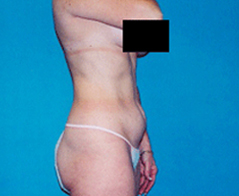 Tummy Tuck (Abdominoplasty) Patient 5 Patient1 Set1 Before Page